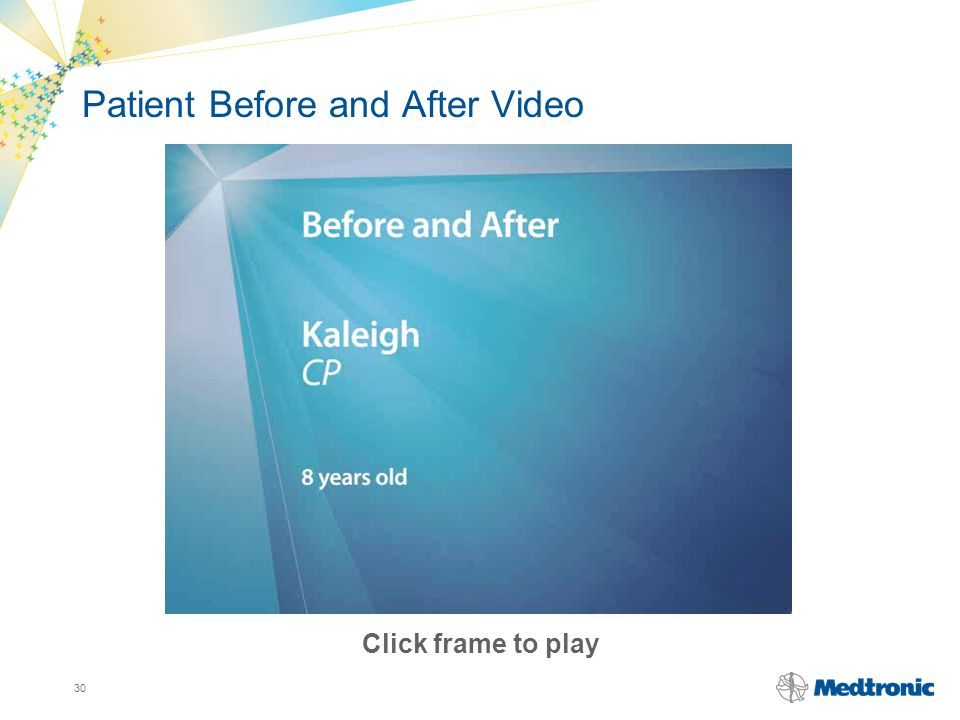 30 Click frame to play Patient Before and After Video