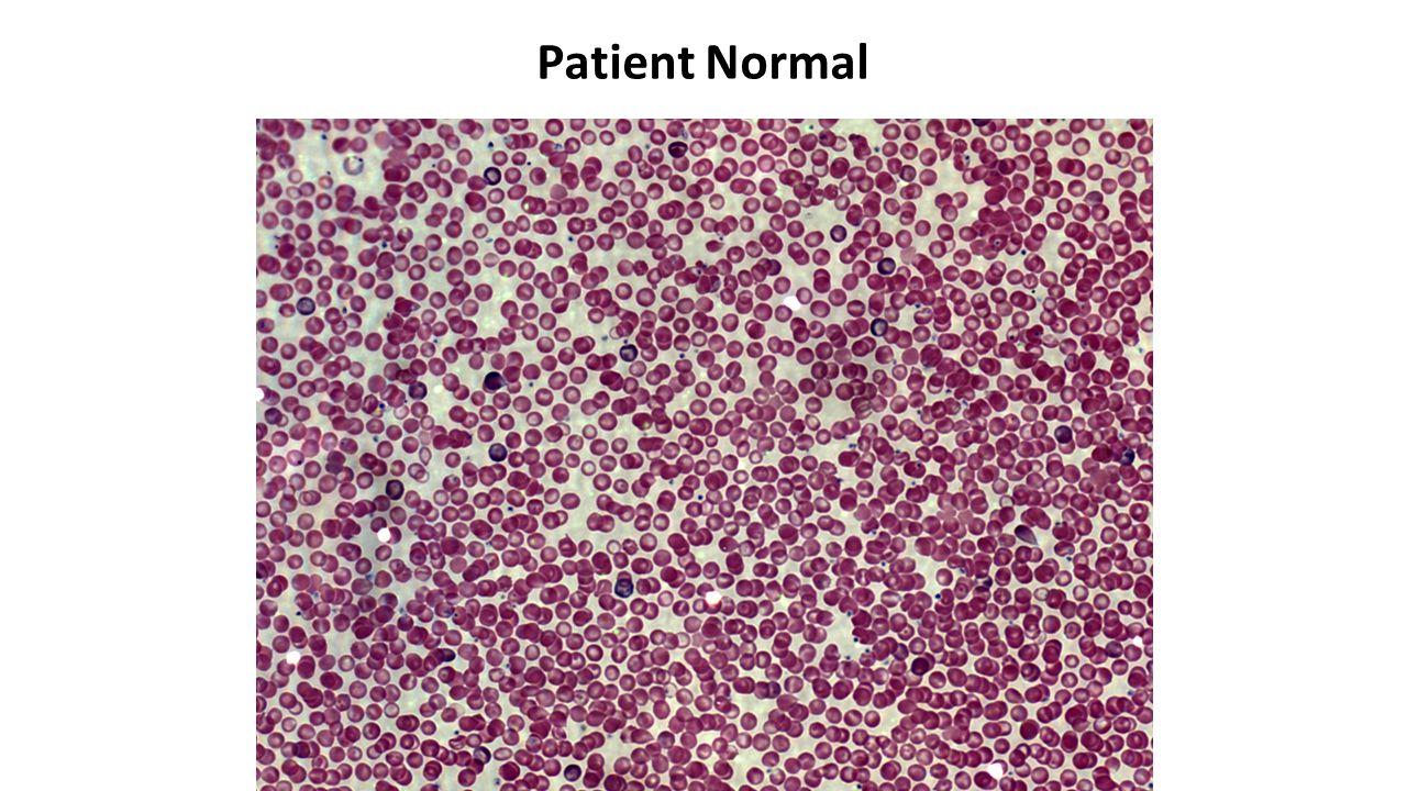 Patient Bt