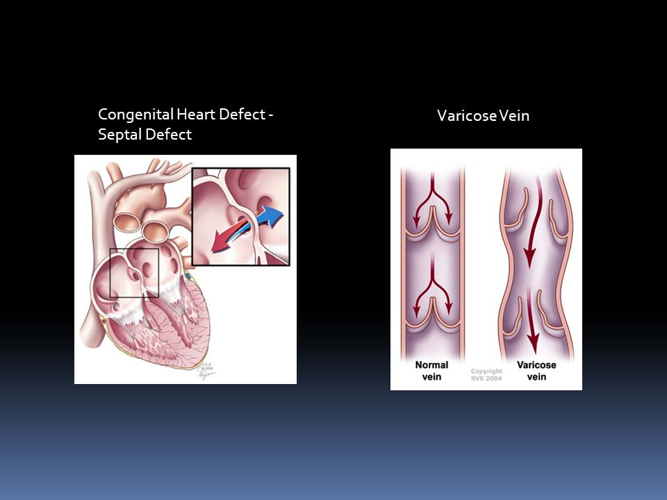 Cardiovascular System Problems  Congenital Heart Defects – heart conditions that are present at birth.