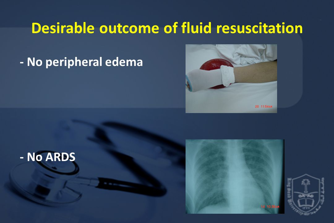 Desirable outcome of fluid resuscitation - No peripheral edema - No ARDS
