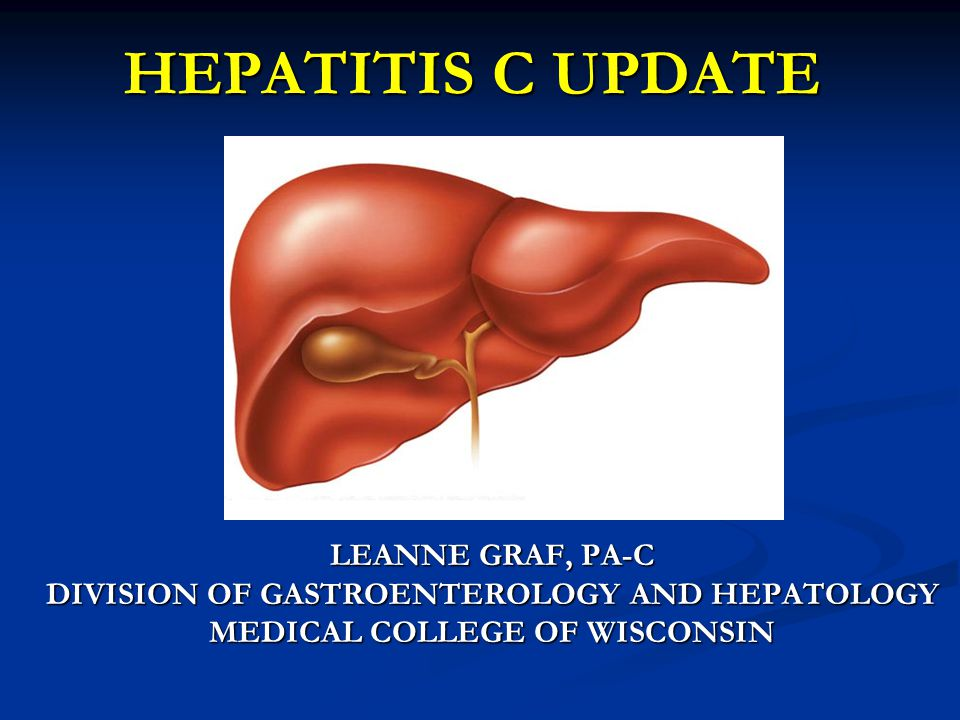 HEPATITIS C UPDATE LEANNE GRAF, PA-C DIVISION OF GASTROENTEROLOGY AND HEPATOLOGY MEDICAL COLLEGE OF WISCONSIN