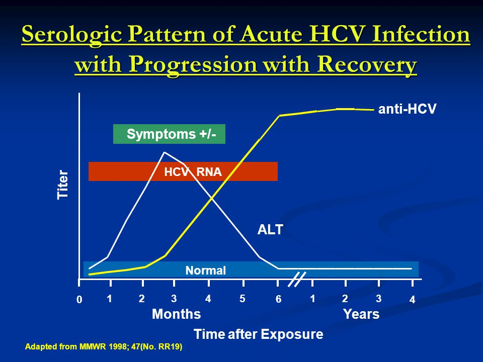 HCV RNA Serologic Pattern of Acute HCV Infection with Progression with Recovery 12345 6 123 4 0 Months Years Titer Time after Exposure ALT anti-HCV Normal Symptoms +/- Adapted from MMWR 1998; 47(No.