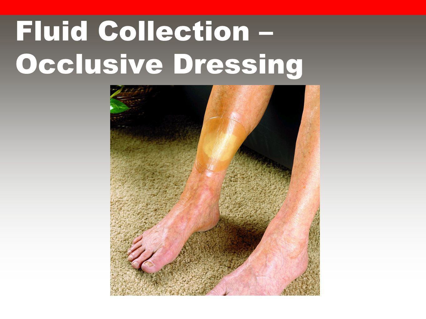 Fluid Collection – Occlusive Dressing