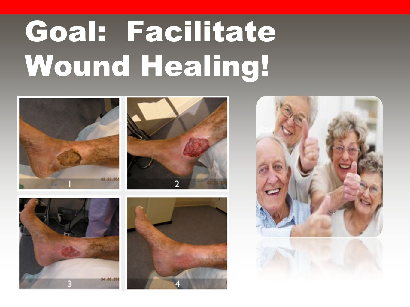 Goal: Facilitate Wound Healing!