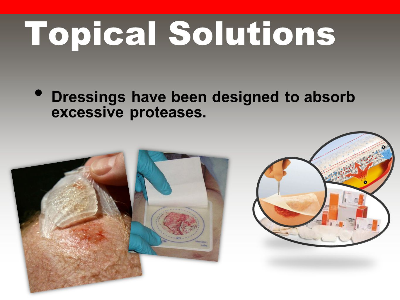 Topical Solutions Dressings have been designed to absorb excessive proteases.