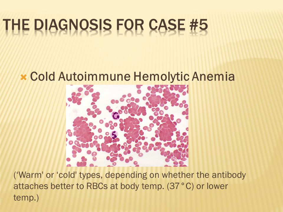 Cold Autoimmune Hemolytic Anemia ('Warm or 'cold types, depending on whether the antibody attaches better to RBCs at body temp.