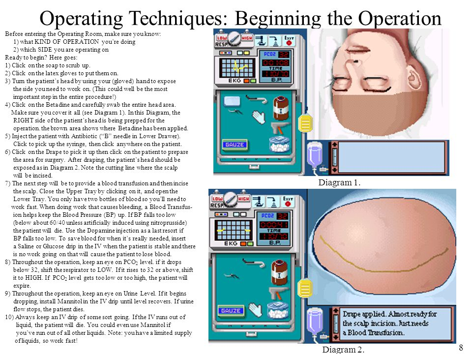 8 Operating Techniques: Beginning the Operation Before entering the Operating Room, make sure you know: 1) what KIND OF OPERATION you're doing 2) which SIDE you are operating on Ready to begin.