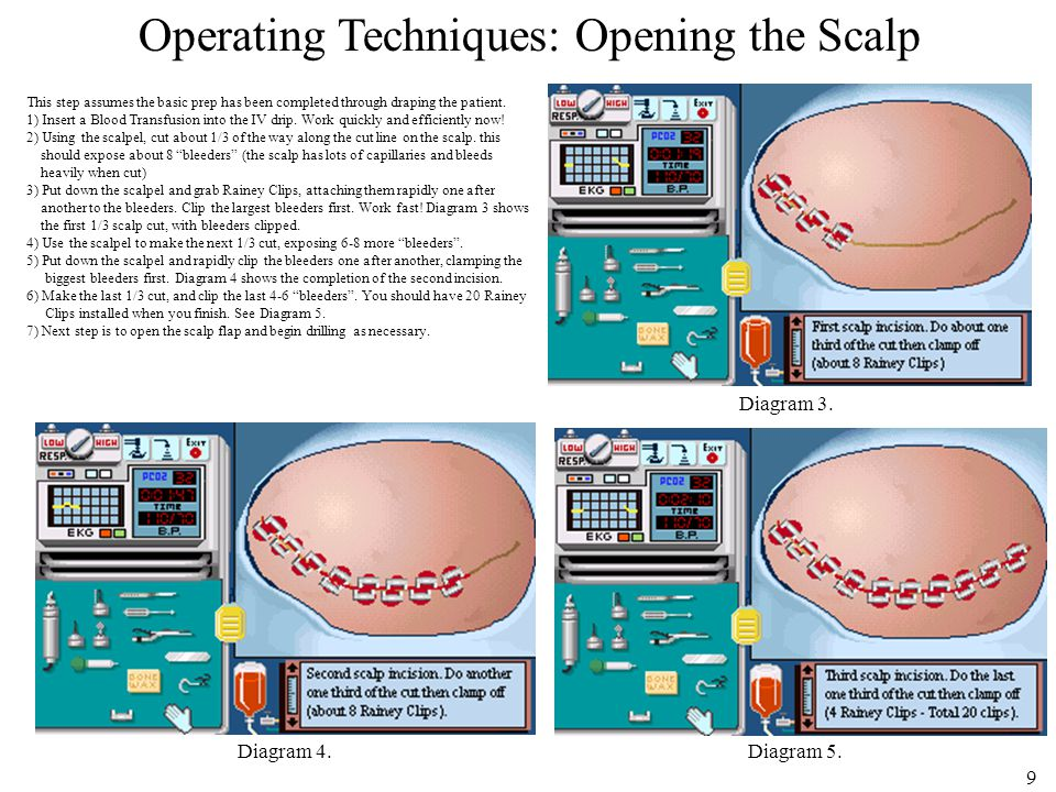 10 Operating Techniques: Opening the Scalp (Cont'd) After the scalp has been cut and clipped, Pull the scalp flap up with your gloved hand to loosen it from the rest of the scalp.