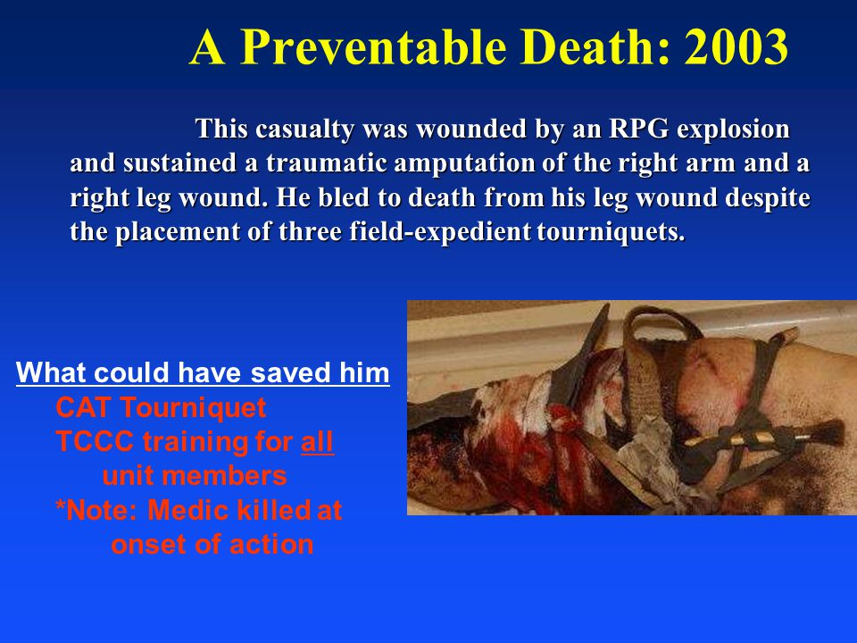 A Preventable Death: 2003 This casualty was wounded by an RPG explosion and sustained a traumatic amputation of the right arm and a right leg wound. H