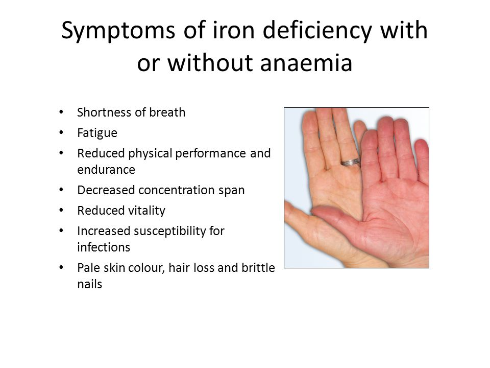 Hb less than 11 g/dl at booking (or less than 10.5 if above 12 weeks gestation) = ANAEMIA AND MCV less than 81fl Dietary advice and Oral Iron Check Ferritin (if not previously done) Ferritin below 30Ferritin above 30 Unable to tolerate oral iron or failure to show rise in Hb after 2 weeks oral iron Consider intravenous iron in second trimester Re-check Hb in 4 weeks after IV Iron No response Seek Haematology Advice Check Haemoglobinopathy Screen No action Thalassemia Trait Normal Low Flow Chart 1b – Anaemia at Booking and MCV less than 81 Re-check Hb in 2 weeks Normal Check Ferritin