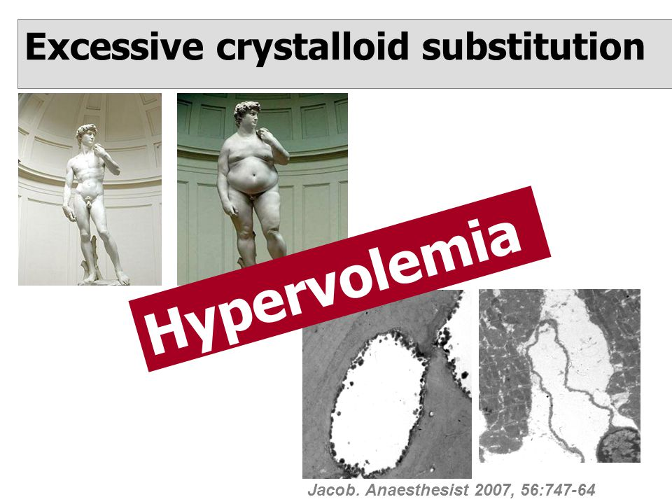 Excessive crystalloid substitution Jacob. Anaesthesist 2007, 56:747-64 Hypervolemia