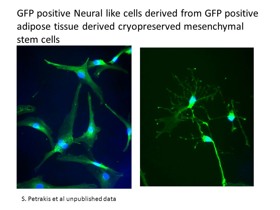 GFP positive Neural like cells derived from GFP positive adipose tissue derived cryopreserved mesenchymal stem cells S. Petrakis et al unpublished dat