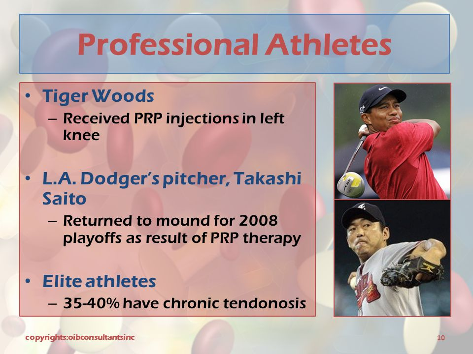Professional Athletes Tiger Woods – Received PRP injections in left knee L.A. Dodger's pitcher, Takashi Saito – Returned to mound for 2008 playoffs as