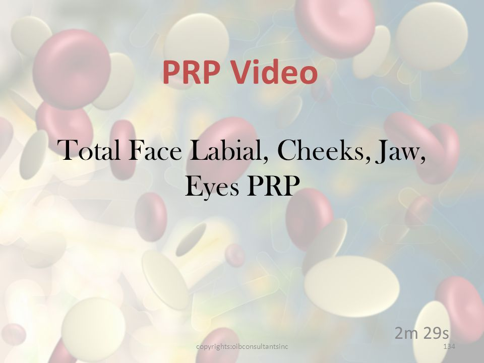 Total Face Labial, Cheeks, Jaw, Eyes PRP 2m 29s PRP Video copyrights:oibconsultantsinc134