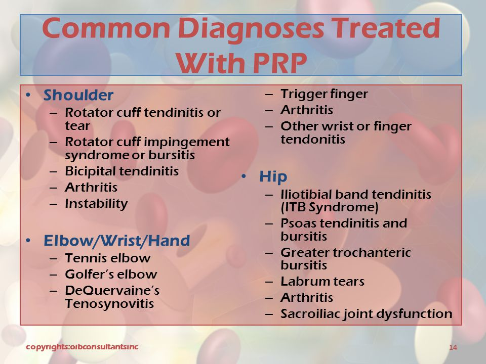 Common Diagnoses Treated With PRP Shoulder – Rotator cuff tendinitis or tear – Rotator cuff impingement syndrome or bursitis – Bicipital tendinitis –