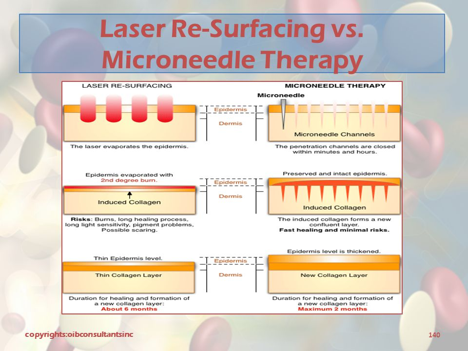 Laser Re-Surfacing vs. Microneedle Therapy copyrights:oibconsultantsinc 140