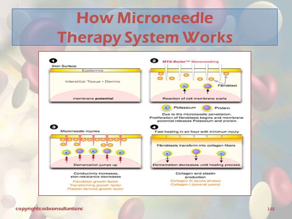 How Microneedle Therapy System Works copyrights:oibconsultantsinc 148