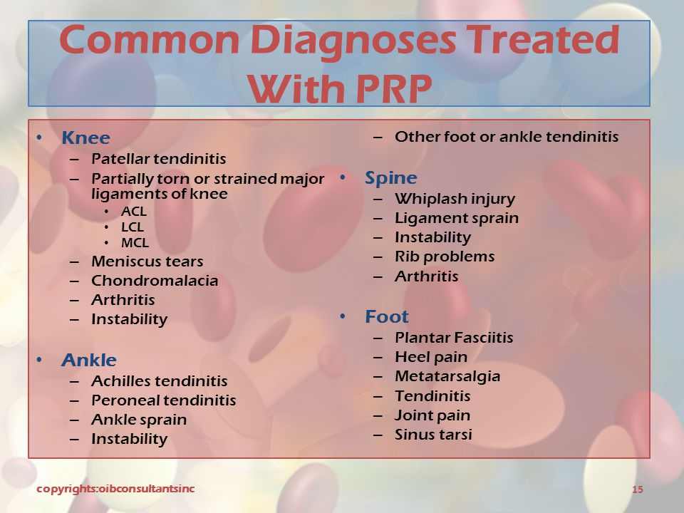 Common Diagnoses Treated With PRP Knee – Patellar tendinitis – Partially torn or strained major ligaments of knee ACL LCL MCL – Meniscus tears – Chond