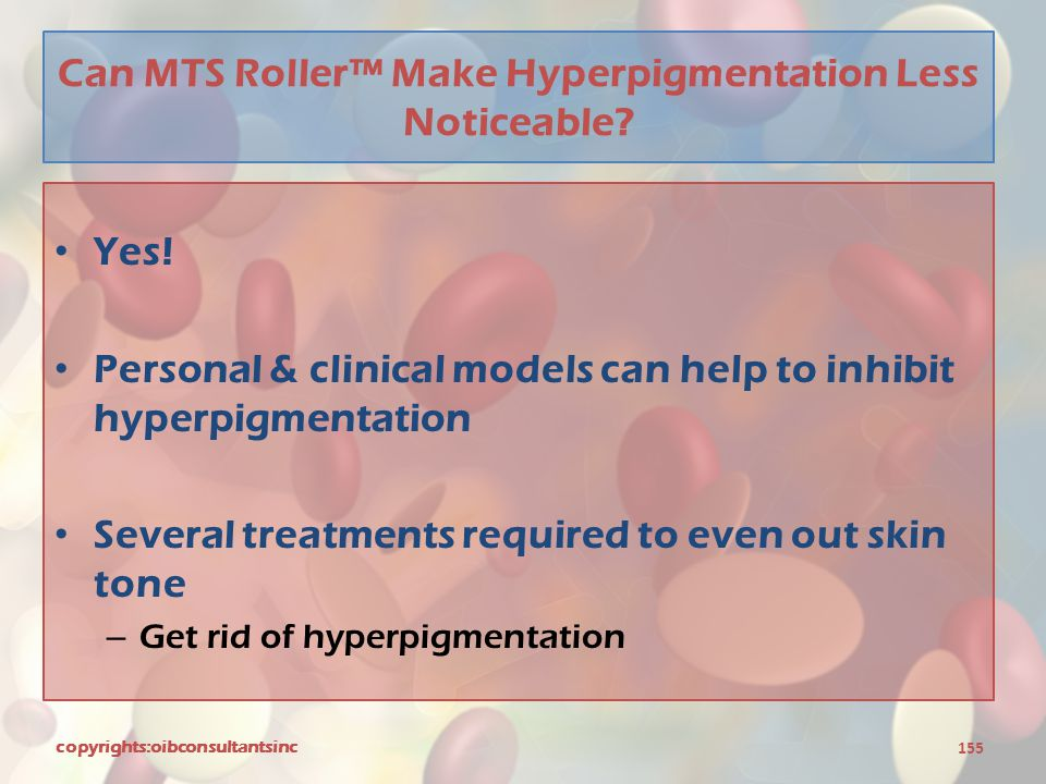 Can MTS Roller™ Make Hyperpigmentation Less Noticeable? Yes! Personal & clinical models can help to inhibit hyperpigmentation Several treatments requi