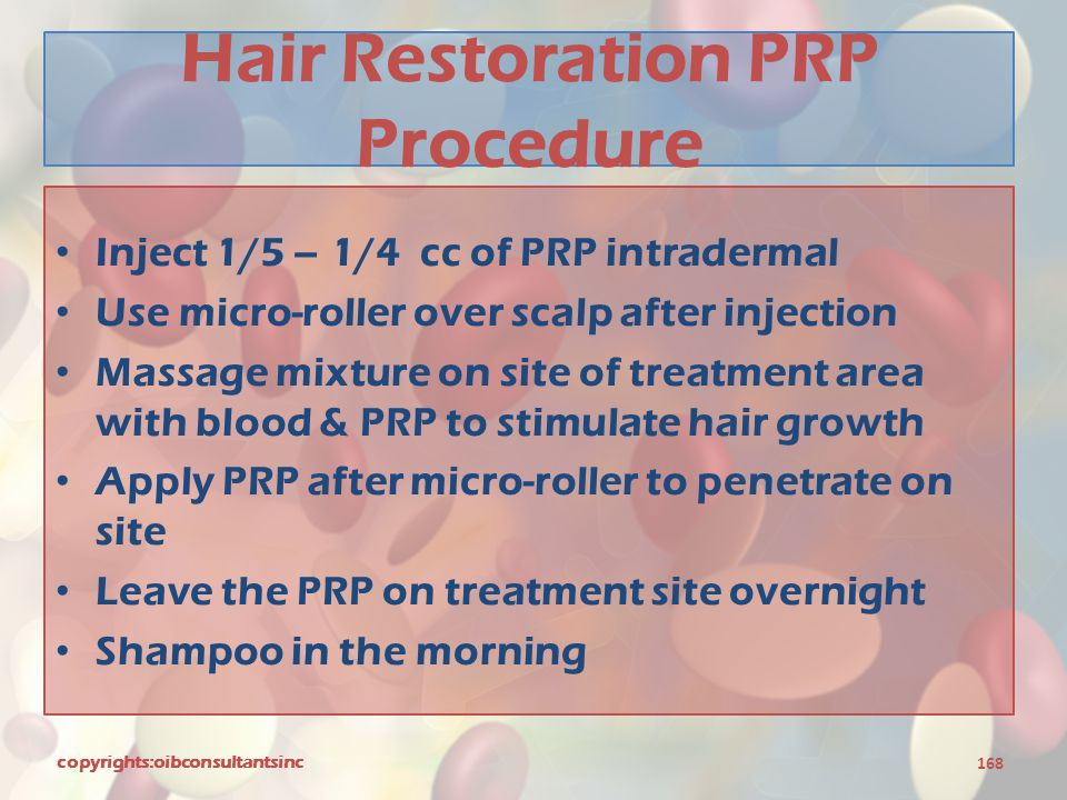 Hair Restoration PRP Procedure Inject 1/5 – 1/4 cc of PRP intradermal Use micro-roller over scalp after injection Massage mixture on site of treatment