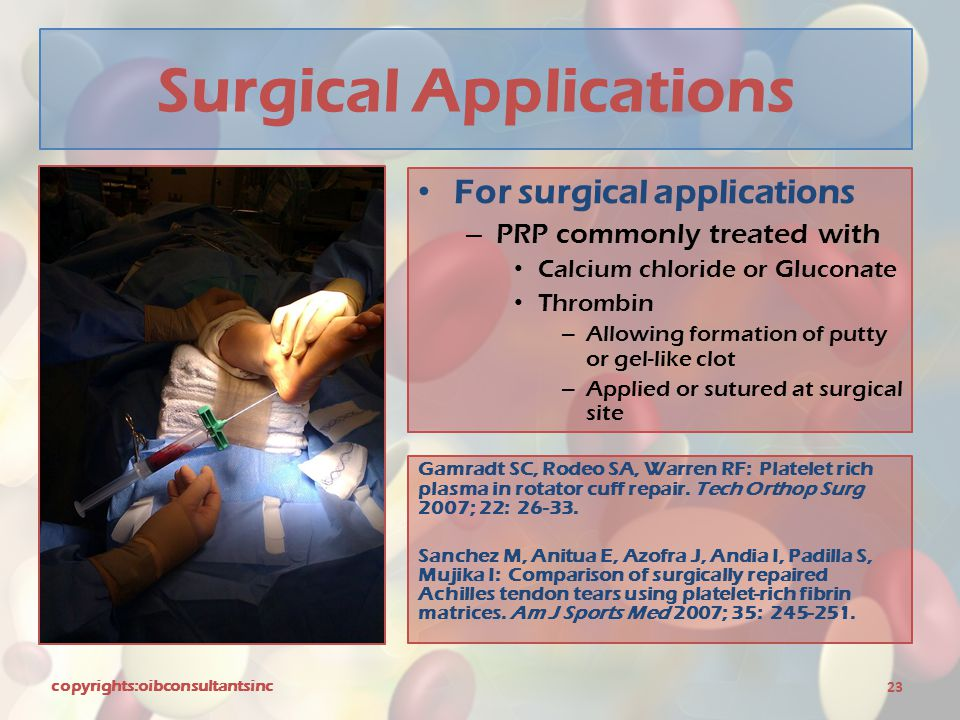 Surgical Applications For surgical applications – PRP commonly treated with Calcium chloride or Gluconate Thrombin – Allowing formation of putty or ge