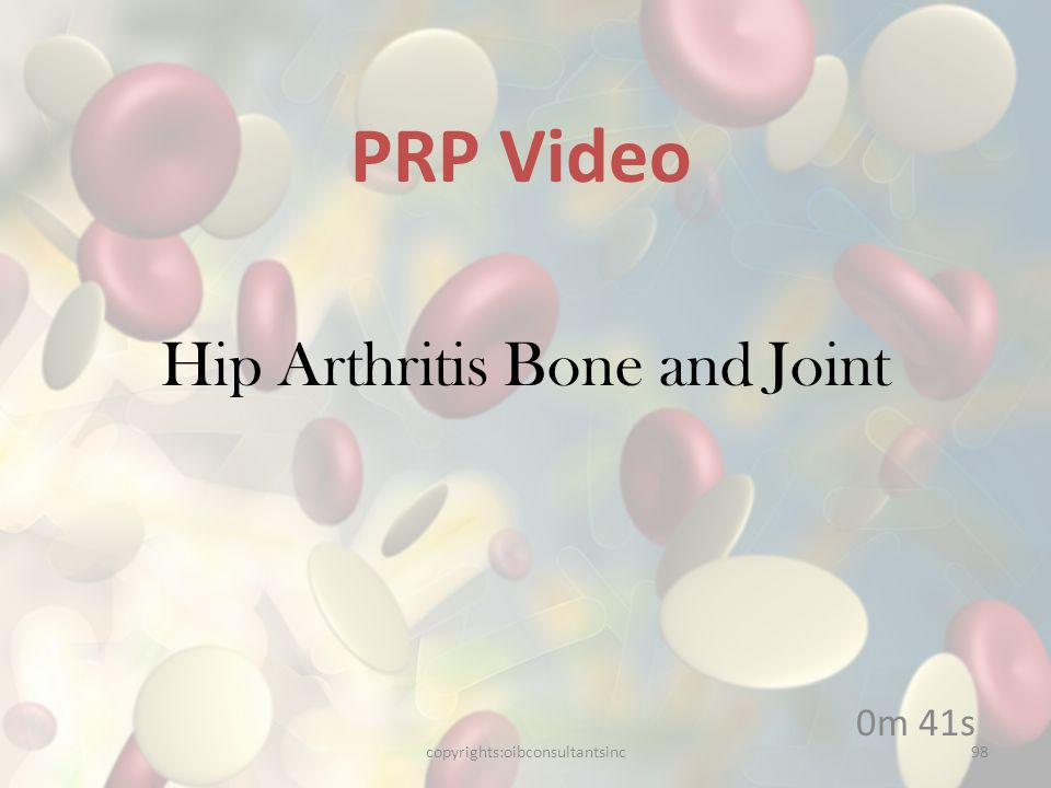 Hip Arthritis Bone and Joint 0m 41s PRP Video copyrights:oibconsultantsinc98