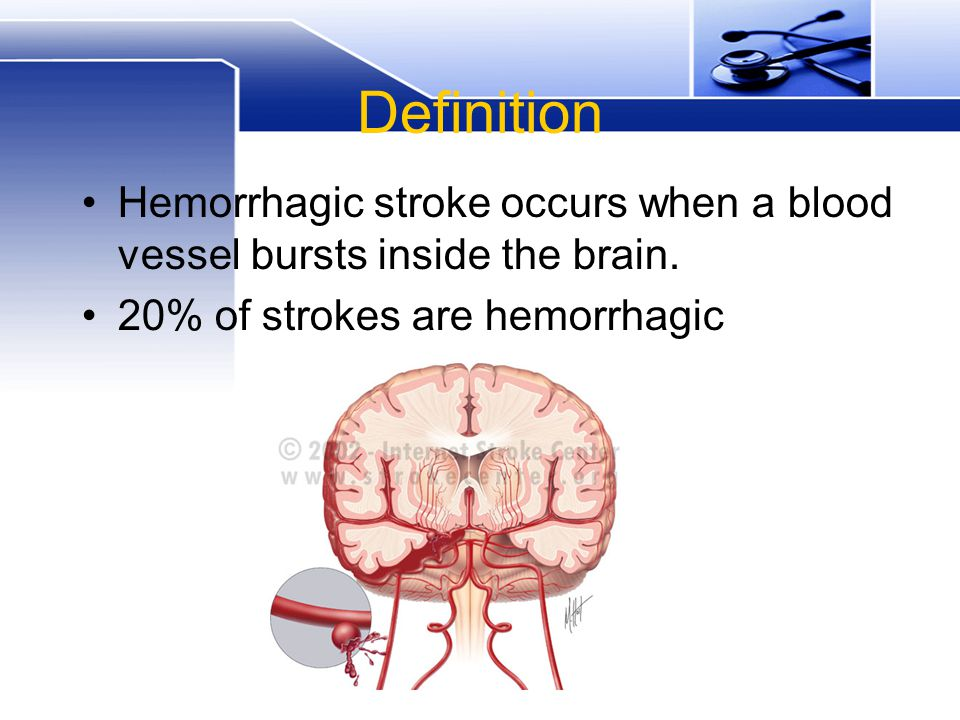Types of hemorrhagic stroke intracerebral hemorrhage subarachnoid hemorrhage