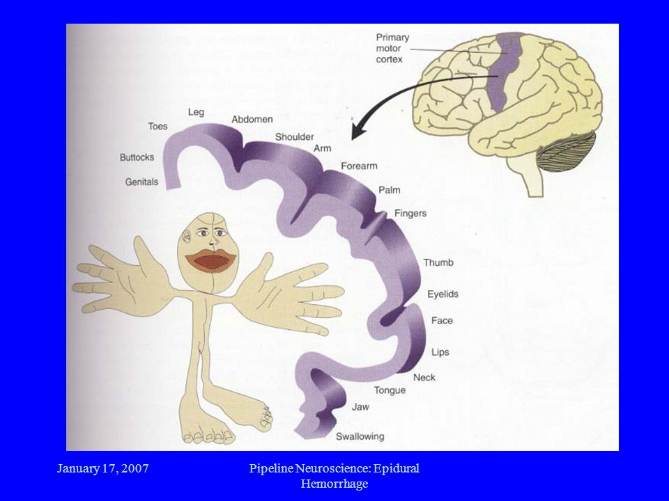 January 17, 2007Pipeline Neuroscience: Epidural Hemorrhage