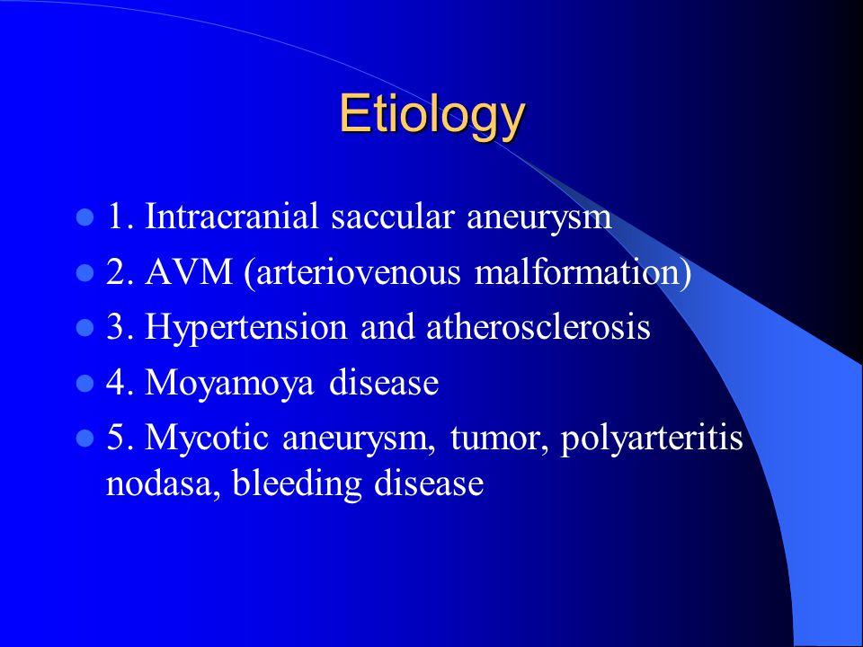 Etiology 1. Intracranial saccular aneurysm 2. AVM (arteriovenous malformation) 3. Hypertension and atherosclerosis 4. Moyamoya disease 5. Mycotic aneu