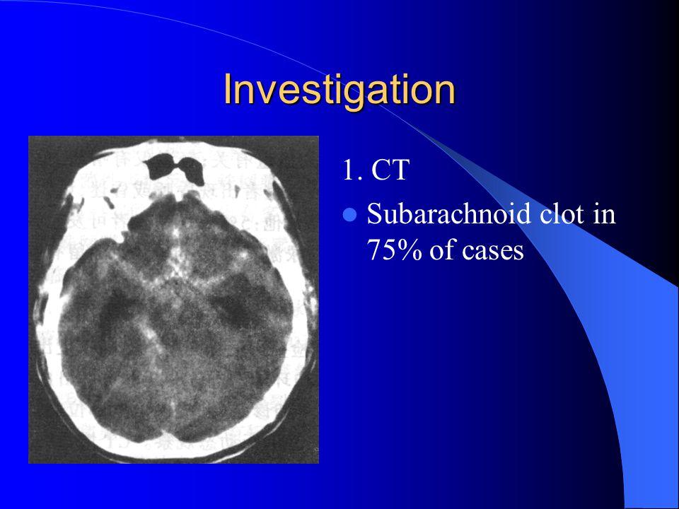 Investigation 1. CT Subarachnoid clot in 75% of cases