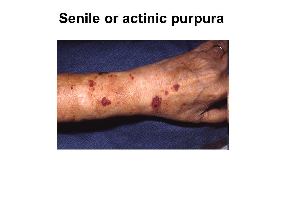 Senile or actinic purpura