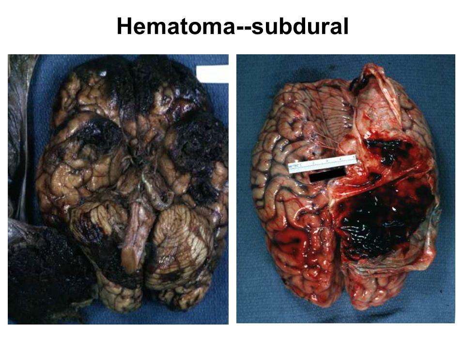 Hematoma--subdural