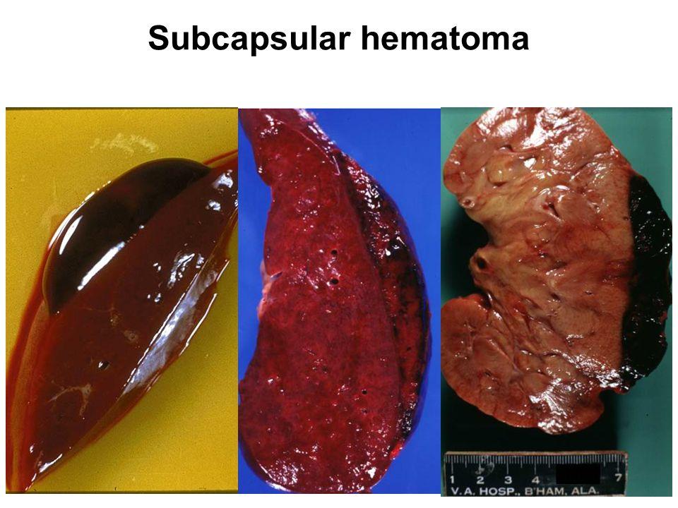 Subcapsular hematoma