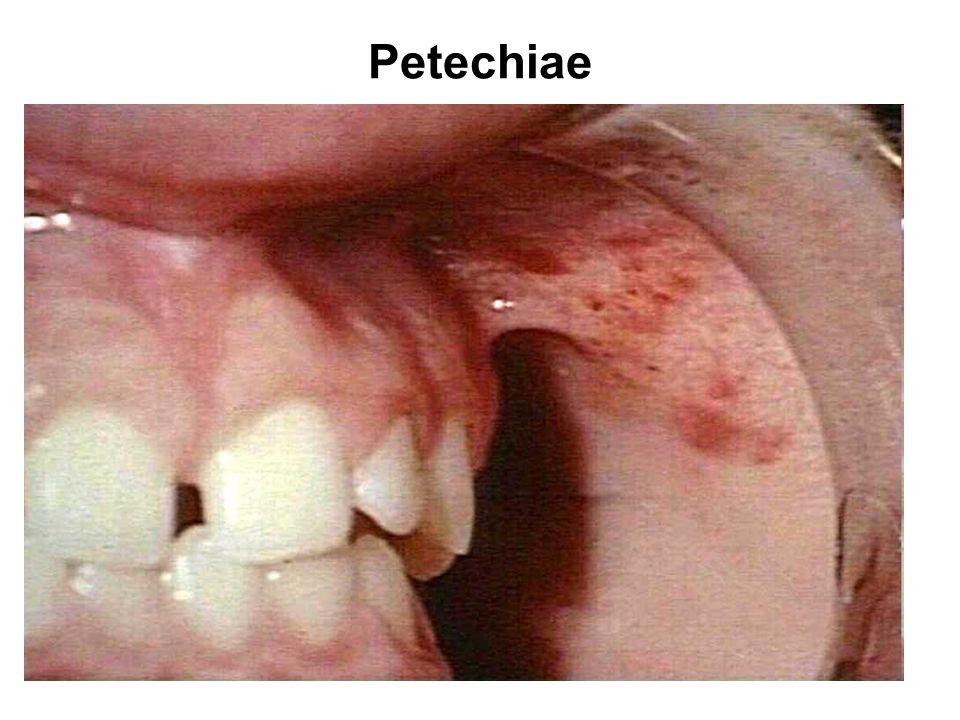 Petechiae