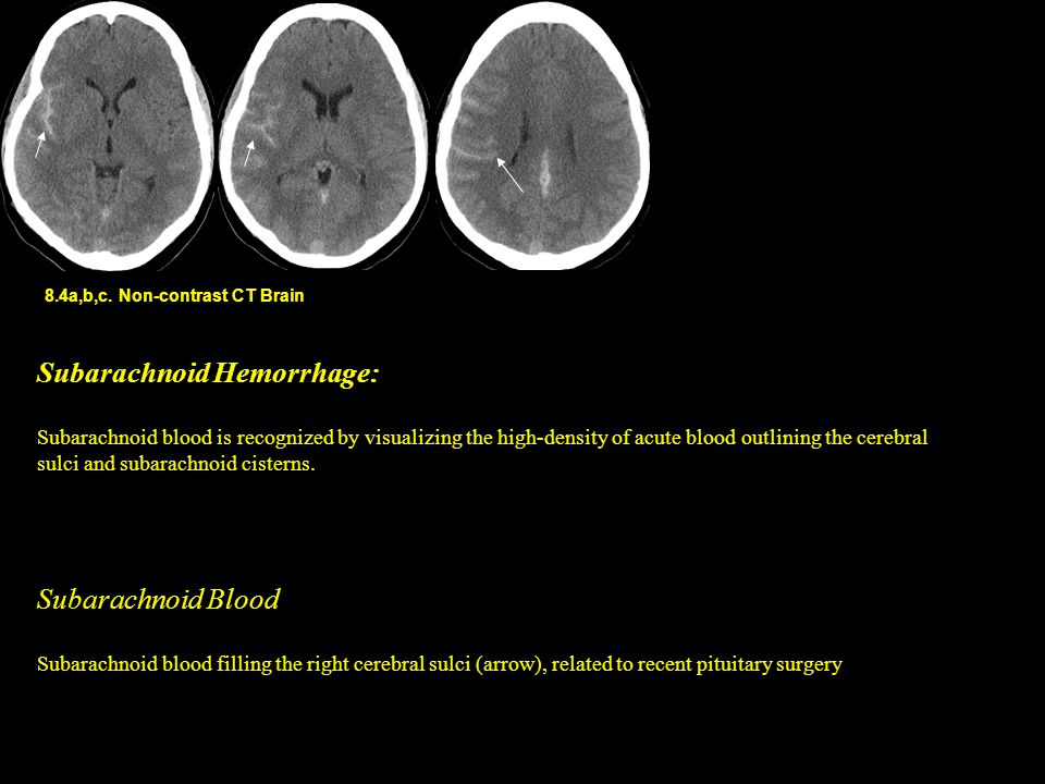 8.4a,b,c. Non-contrast CT Brain Subarachnoid Hemorrhage: Subarachnoid blood is recognized by visualizing the high-density of acute blood outlining the