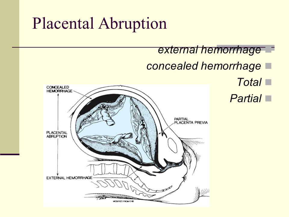 Placental Abruption external hemorrhage concealed hemorrhage Total Partial