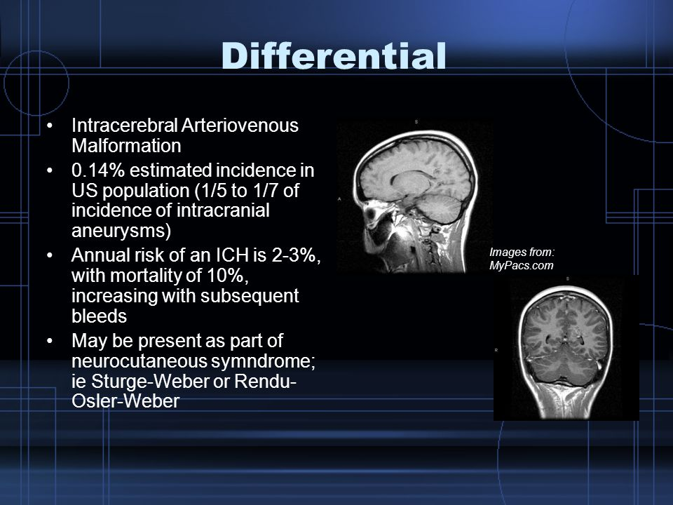 Differential Intracerebral Arteriovenous Malformation 0.14% estimated incidence in US population (1/5 to 1/7 of incidence of intracranial aneurysms) Annual risk of an ICH is 2-3%, with mortality of 10%, increasing with subsequent bleeds May be present as part of neurocutaneous symndrome; ie Sturge-Weber or Rendu- Osler-Weber Images from: MyPacs.com