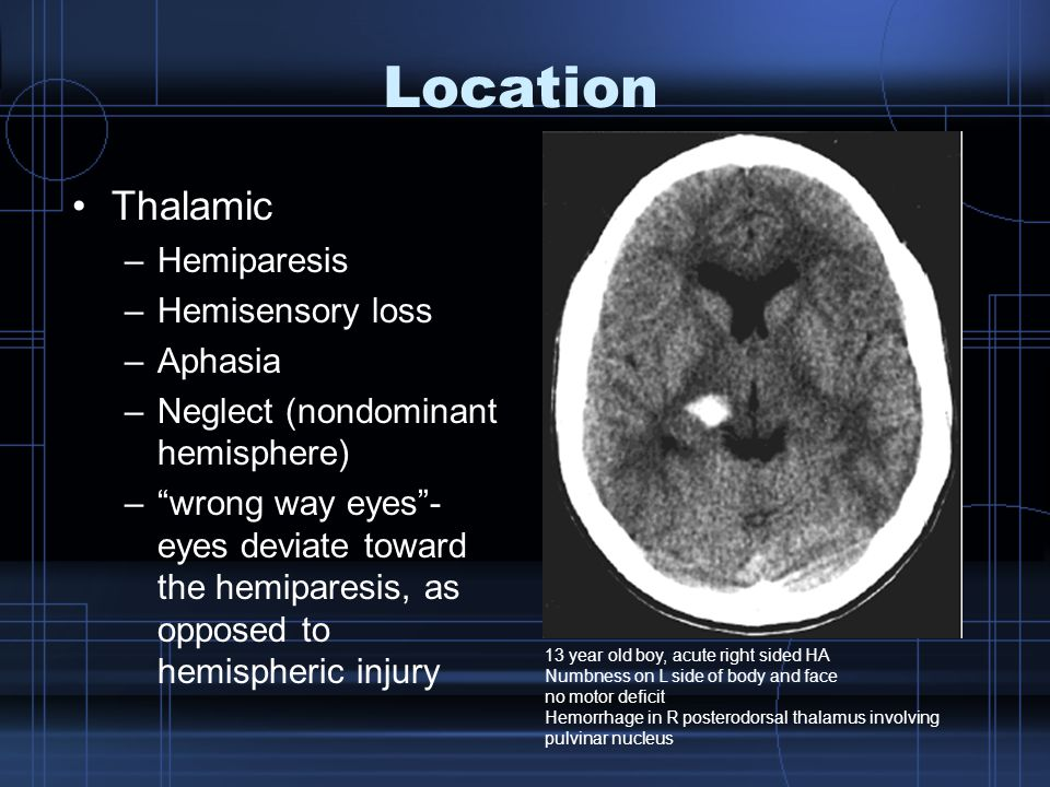 Location Thalamic –Hemiparesis –Hemisensory loss –Aphasia –Neglect (nondominant hemisphere) – wrong way eyes - eyes deviate toward the hemiparesis, as opposed to hemispheric injury 13 year old boy, acute right sided HA Numbness on L side of body and face no motor deficit Hemorrhage in R posterodorsal thalamus involving pulvinar nucleus