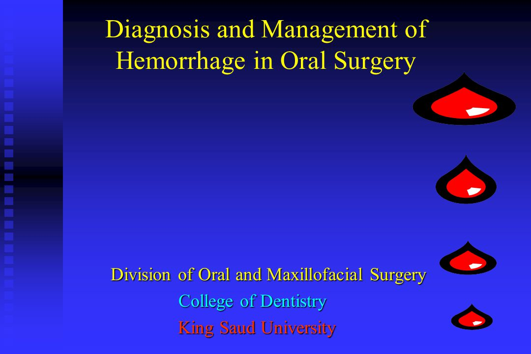 Diagnosis and Management of Hemorrhage in Oral Surgery Division of Oral and Maxillofacial Surgery Division of Oral and Maxillofacial Surgery College o