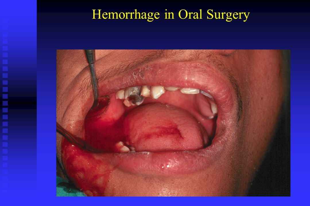 Local causes of hemorrhage in oral surgery Local causes of hemorrhage originate in either soft tissue or bone.