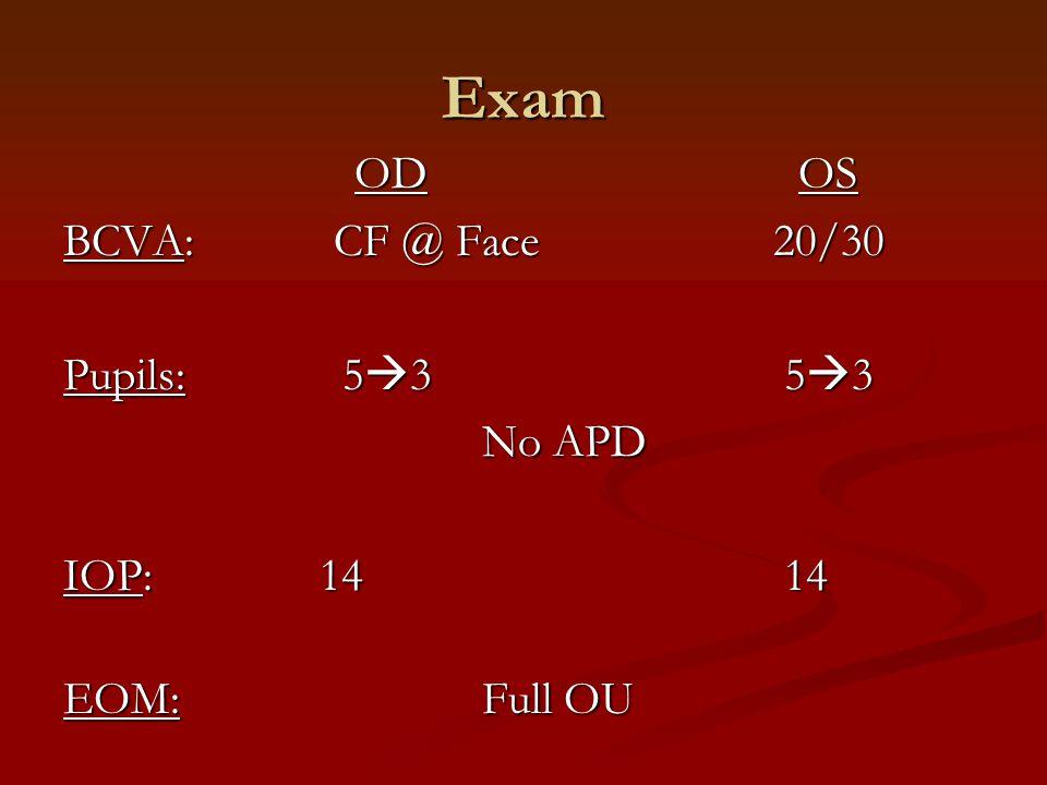 Exam OD OS OD OS BCVA: CF @ Face 20/30 Pupils: 5  3 5  3 No APD IOP: 14 14 EOM:Full OU
