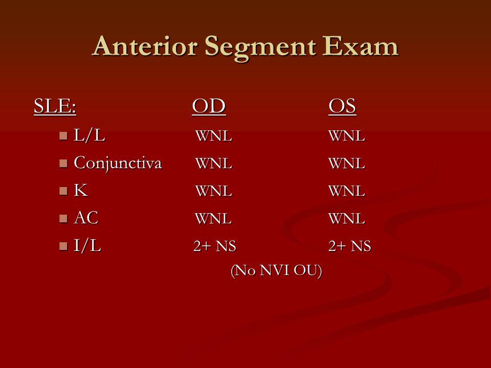 SLE: ODOS L/L WNLWNL L/L WNLWNL Conjunctiva WNLWNL Conjunctiva WNLWNL K WNLWNL K WNLWNL AC WNLWNL AC WNLWNL I/L 2+ NS2+ NS I/L 2+ NS2+ NS (No NVI OU) Anterior Segment Exam