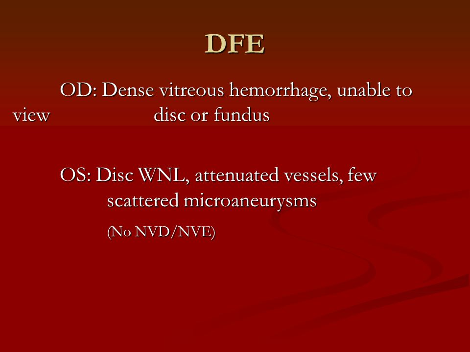 DFE OD: Dense vitreous hemorrhage, unable to view disc or fundus OS: Disc WNL, attenuated vessels, few scattered microaneurysms (No NVD/NVE)