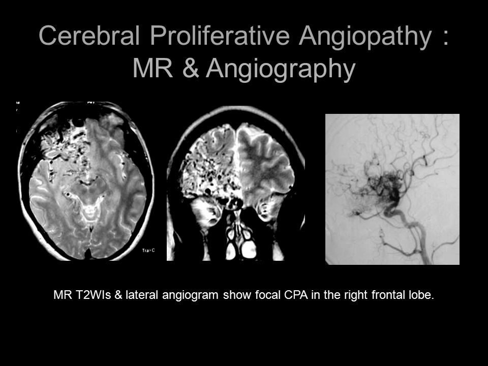 MR T2WIs & lateral angiogram show focal CPA in the right frontal lobe. Cerebral Proliferative Angiopathy : MR & Angiography