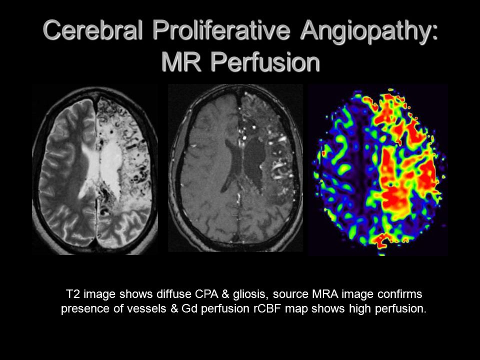 Cerebral Proliferative Angiopathy: MR Perfusion T2 image shows diffuse CPA & gliosis, source MRA image confirms presence of vessels & Gd perfusion rCB