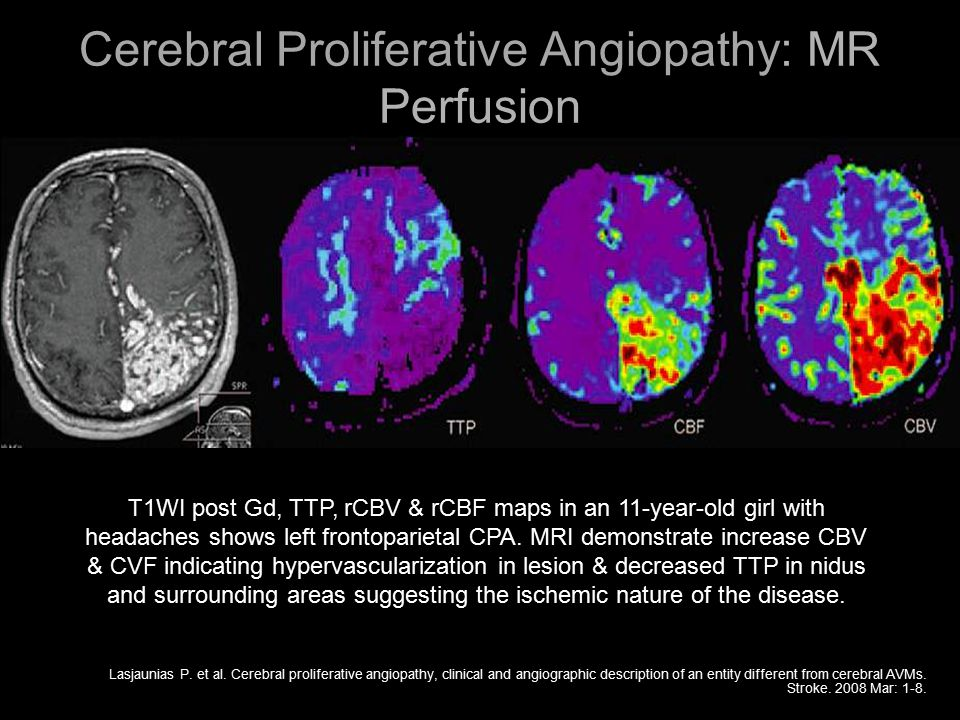 Cerebral Proliferative Angiopathy: MR Perfusion Lasjaunias P. et al. Cerebral proliferative angiopathy, clinical and angiographic description of an en