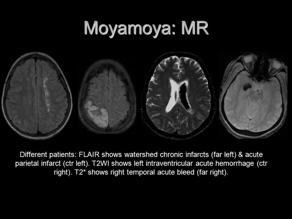 Moyamoya: MR Different patients: FLAIR shows watershed chronic infarcts (far left) & acute parietal infarct (ctr left). T2WI shows left intraventricul