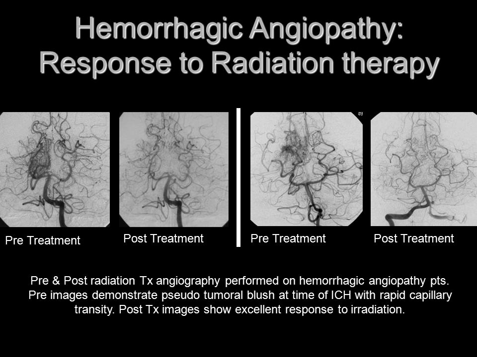 Hemorrhagic Angiopathy: Response to Radiation therapy Pre & Post radiation Tx angiography performed on hemorrhagic angiopathy pts. Pre images demonstr