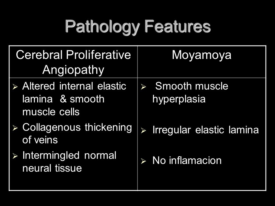 Pathology Features Cerebral Proliferative Angiopathy Moyamoya  Altered internal elastic lamina & smooth muscle cells  Collagenous thickening of vein