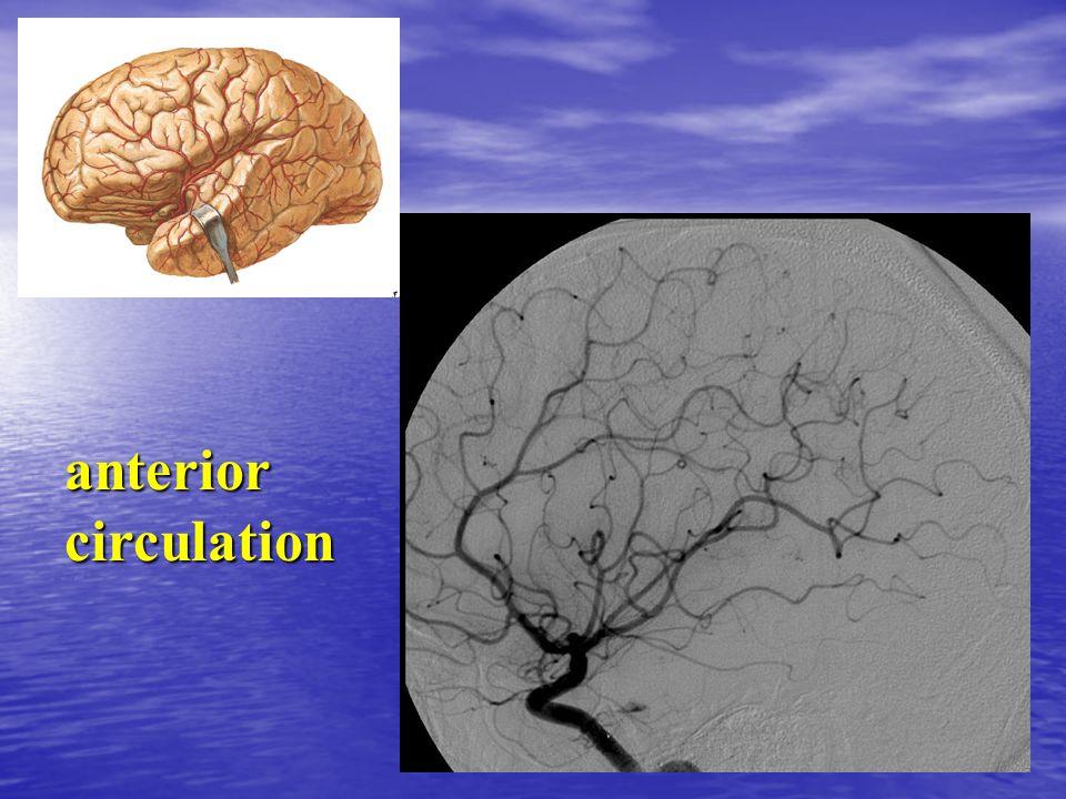 anteriorcirculation